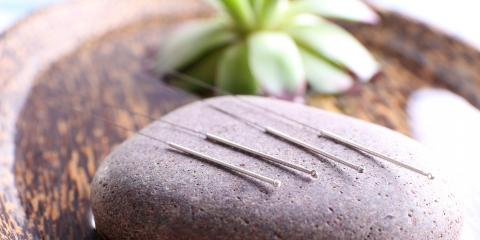 How Acupuncture Can Elevate Mood, Nyack, New York